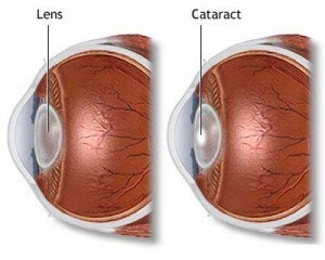 Cataract Surgery 02